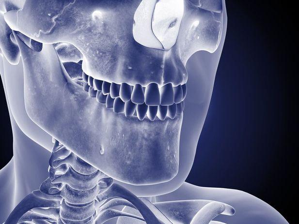 Image of healthy jawbone