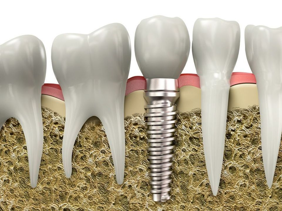 Cross-section of dental implant embedded in jaw