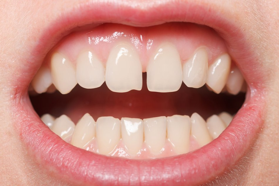 Close up of a gapped smile with chipped teeth