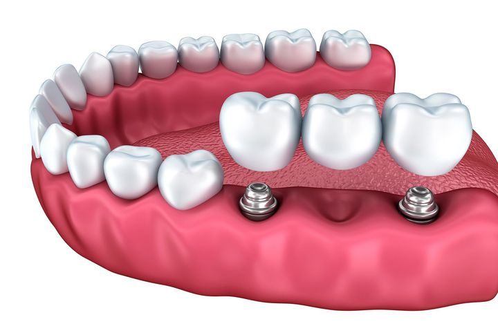 An implant-supported bridge