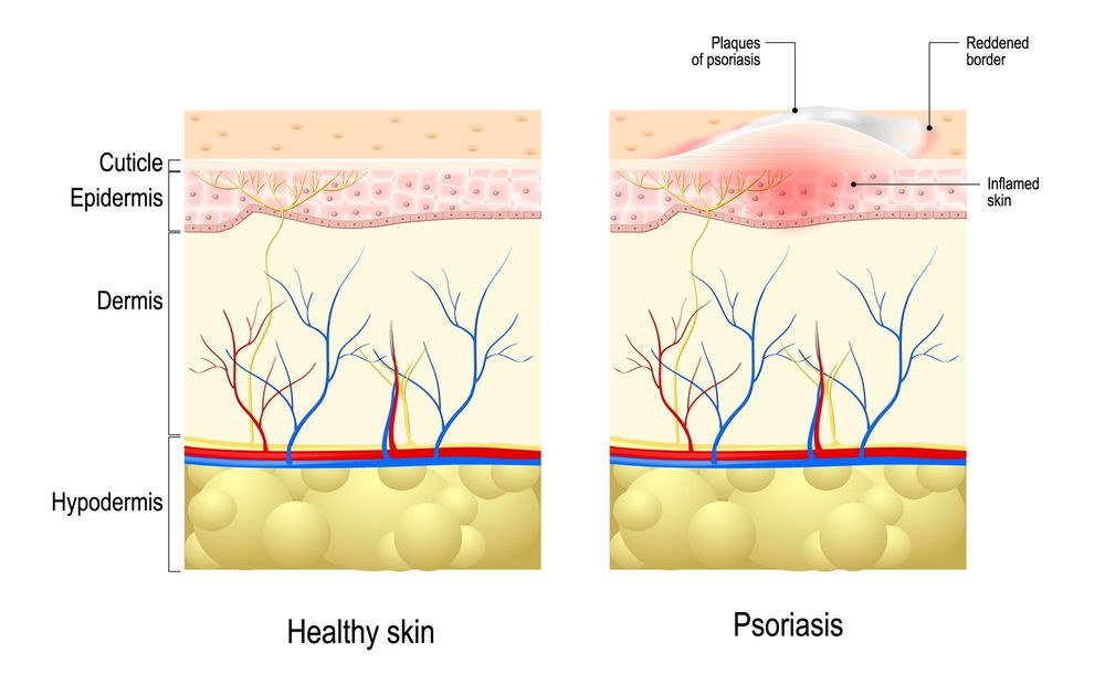 Illustrated comparison of the layers of skin in a patient without and with psoriasis.