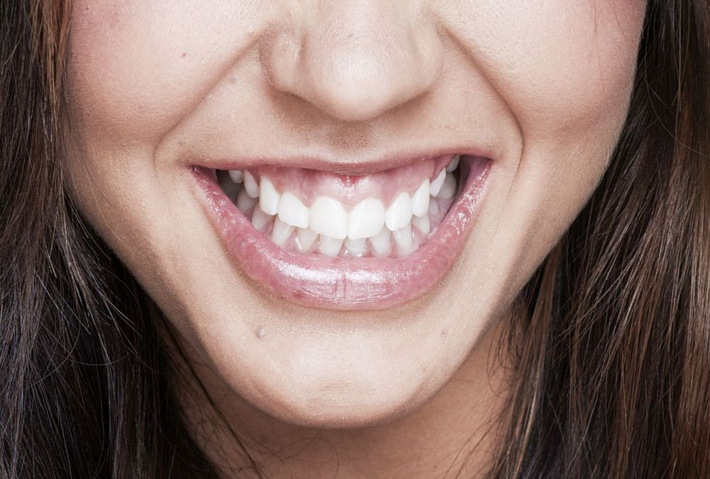 A gummy smile, making patient's teeth appear smaller.