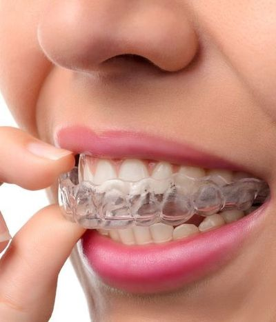 Close up of woman's mouth applying Invisalign tray