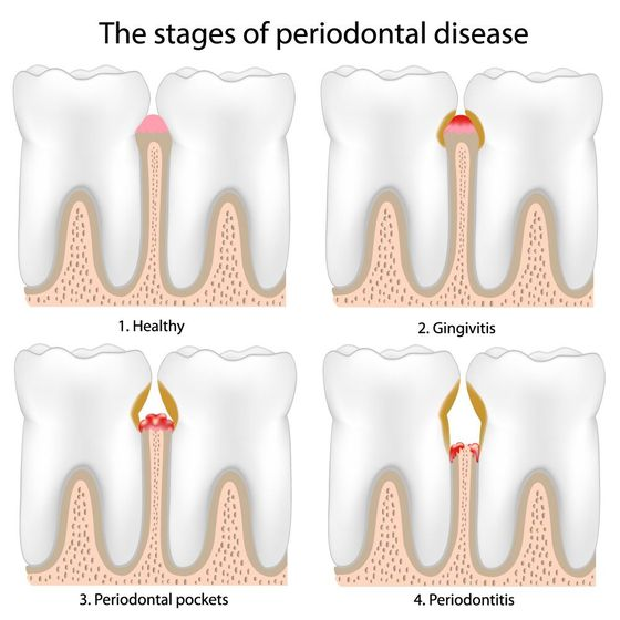 Illustration showing the stages of periodontal disease