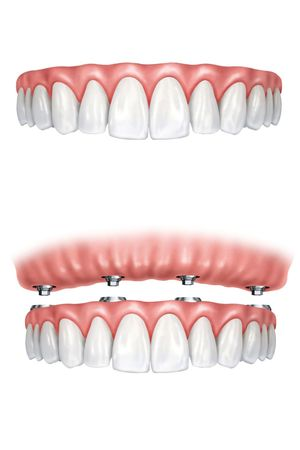 An illustration of traditional and implant-supported dentures.
