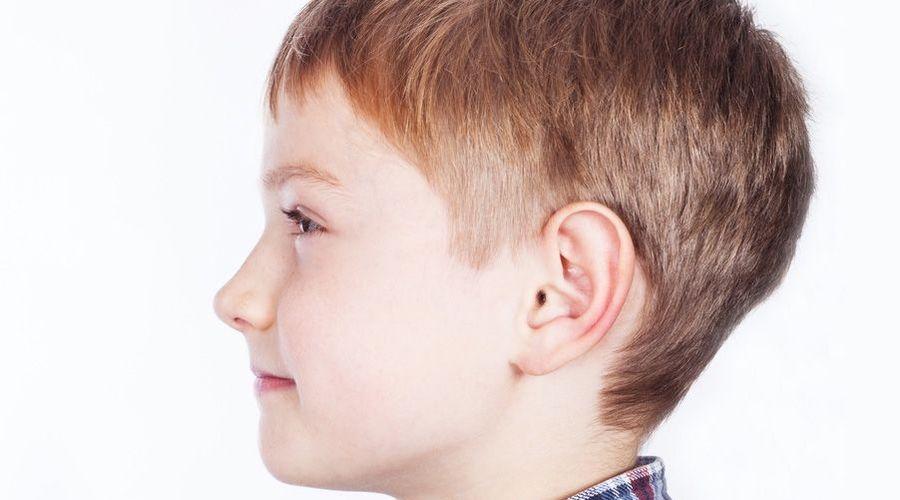 boy with otoplasty