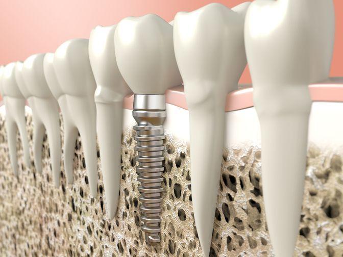 image of dental implant and restoration