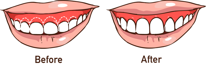Illustration demonstrating position of gum line before and after surgery