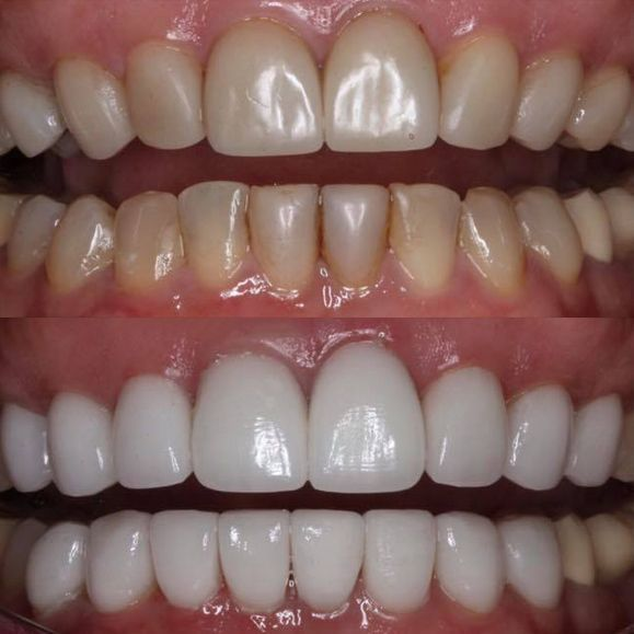 Before and after smile makeover treatment.