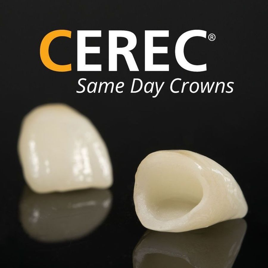 Photo of cerec logo and crowns