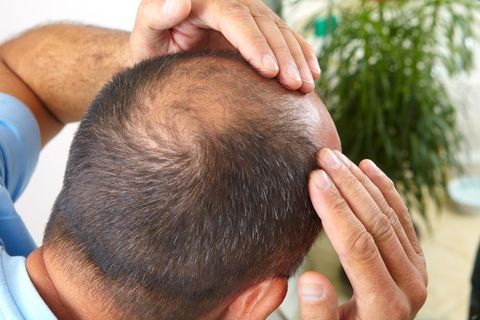 Man touching balding areas on head