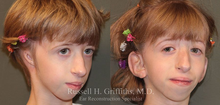 Before and After: One-stage microtia ear reconstruction surgery with Medpor and canalplasty 3/4 view.