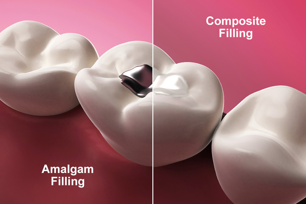 Illustration side-by-side of an amalgam filling and tooth-colored filling