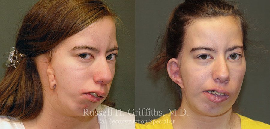 goldenhar syndrome- boise, id - hemifacial microsomia - dr. griffiths, Skeleton