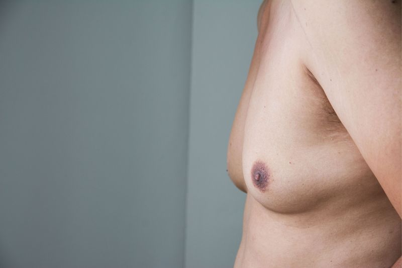 Man with excess breast tissue