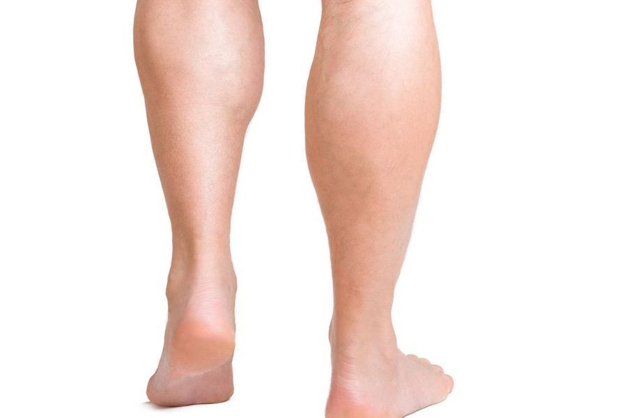 Comparison of calf muscles with and without an implant.