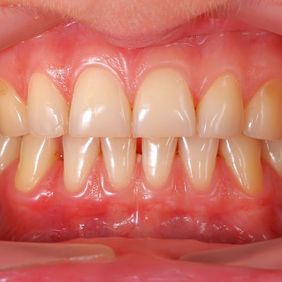 Close-up of a patient's teeth and gum line