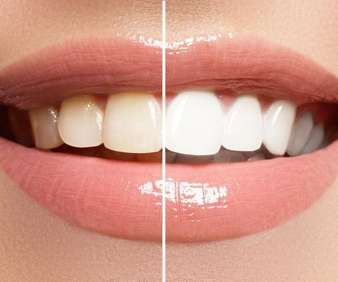 A closeup of a woman's smile
