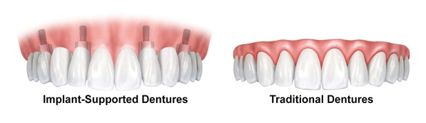 Illustration of an implant-supported denture next to a traditional denture