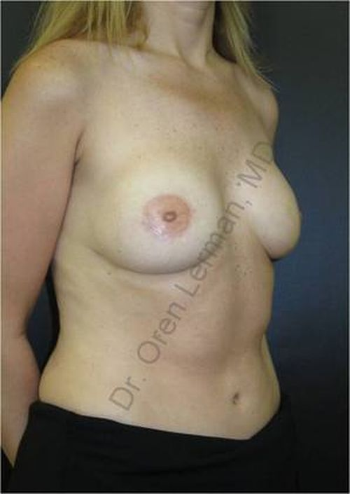 Image of after DIEP flap surgery