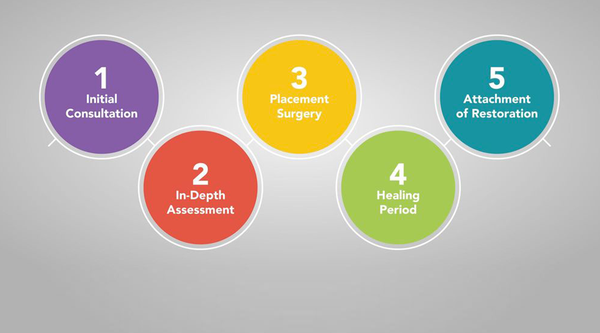 steps of dental implant surgery