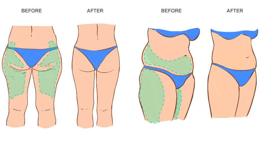 Illustration of areas targeted by a full body lift