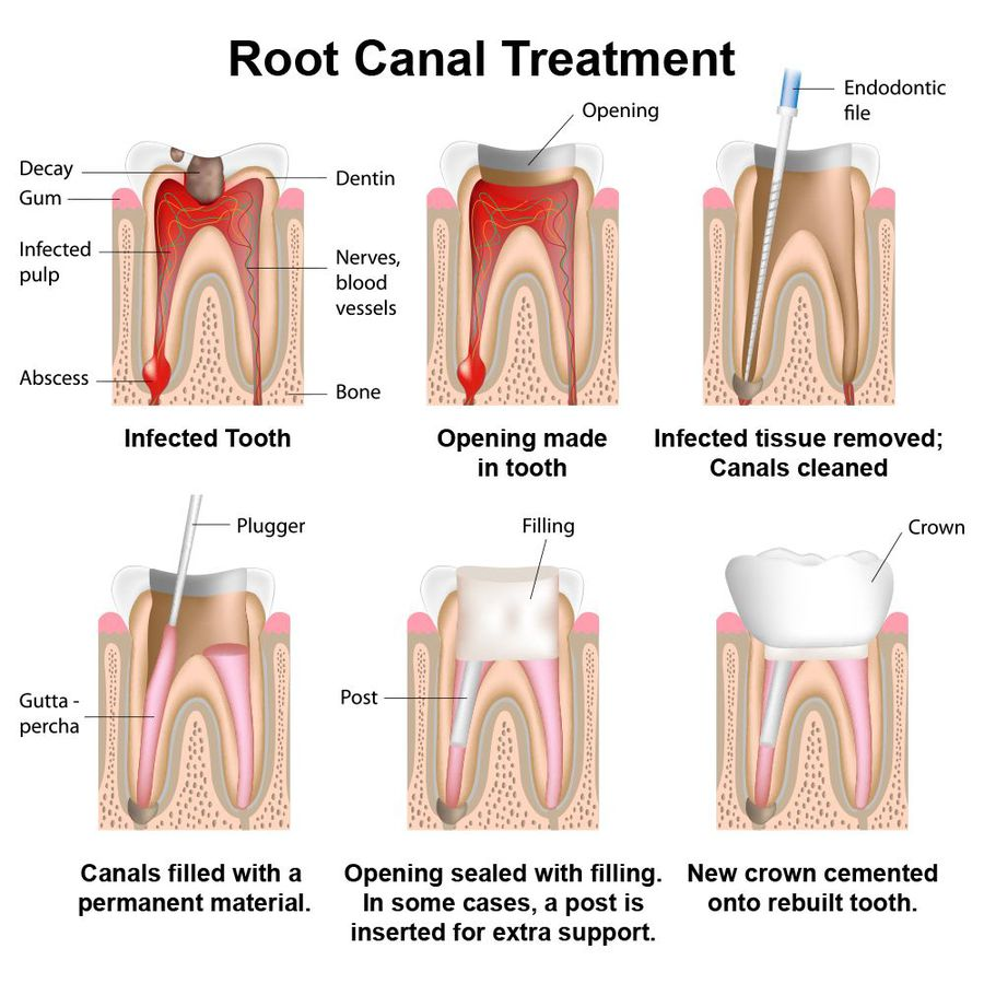 Detailed illustration of the root canal therapy process.