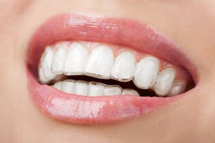 Close up of woman's teeth with Invisalign tray
