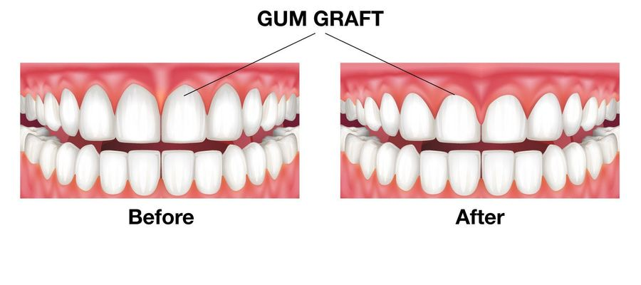 Teeth before and after gum graft