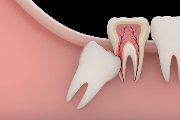 Illustration of a wisdom tooth growing into neighboring molar