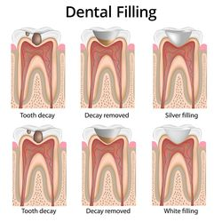 Diagram of the steps for placing a dental filling