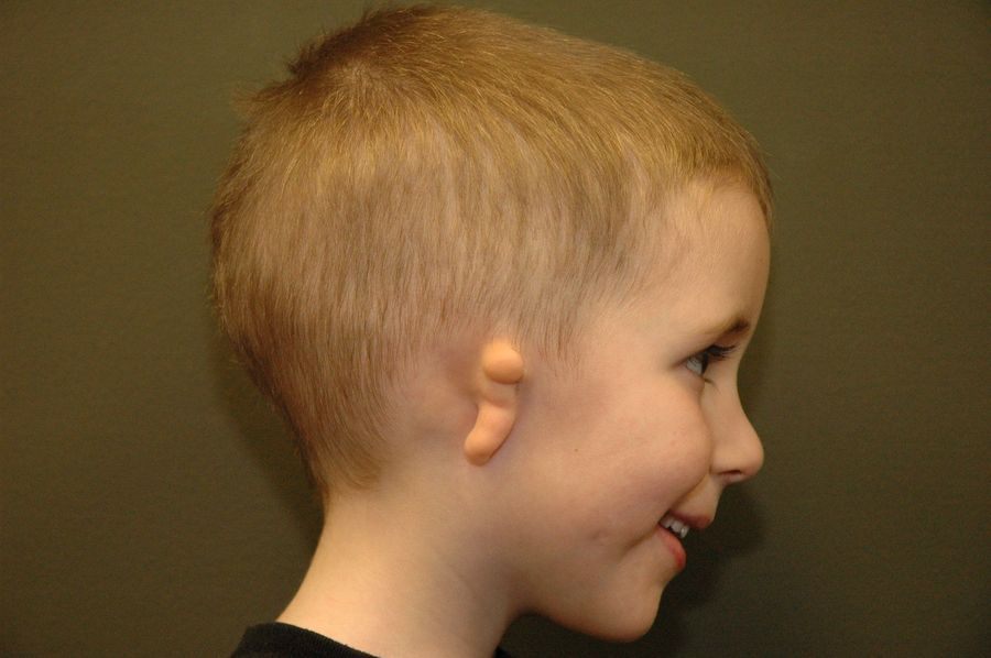 Profile shot of small boy smiling with Type III Microtia