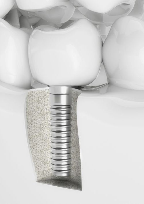 illustration of a dental implant
