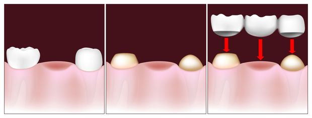 Illustration showing steps of traditional dental bridge placement