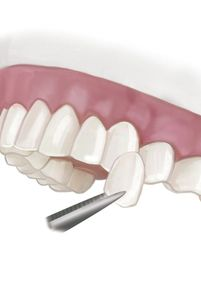 Illustration of a single porcelain veneer in front of a row of teeth