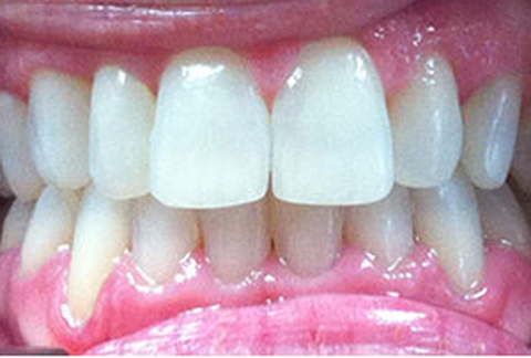 A patient's straight teeth after Six Month Smiles® treatment