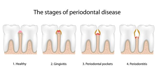 Illustration of stages of periodontal disease