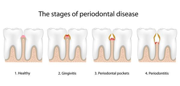 Image of stages of periodontal disease