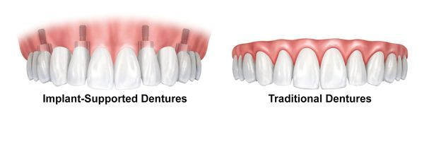 illustration of implant-supported dentures and traditional dentures
