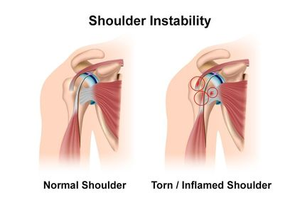 unstable shoulder