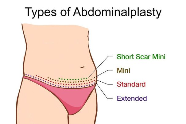 Illustration showing tummy tuck incision patterns