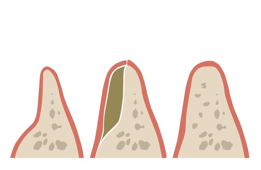 Illustration of before, during and after bone grafting