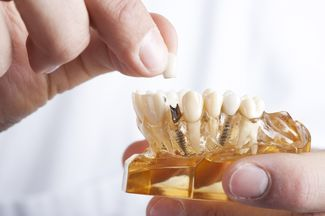 Hands holding resin model of lower jaw and dental implants