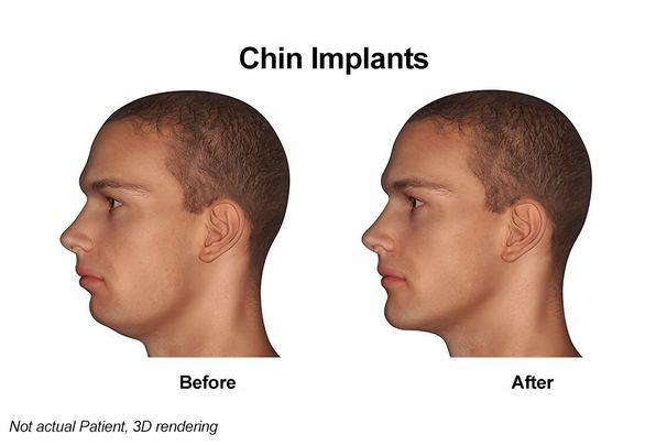 Digital rendering of before and after chin implant photos
