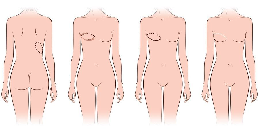 Illustration of latissimus dorsi flap breast reconstruction