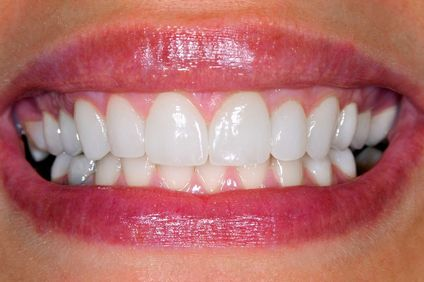 Image of close-up smile and bright white teeth