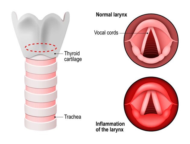 Illustration of healthy vs. inflamed vocal cords