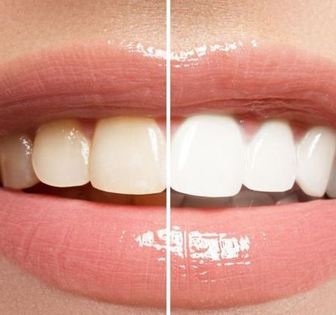 Side by side photo showing results of teeth whitening