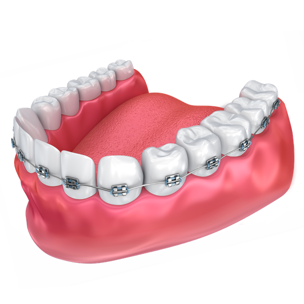Illustration of traditional braces