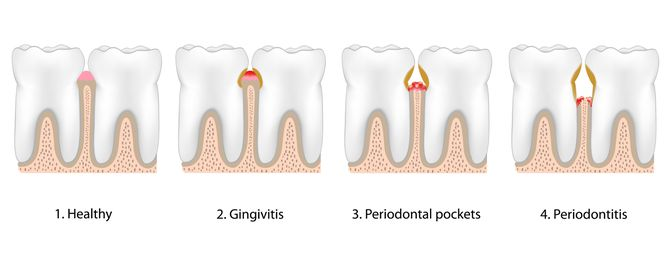 Illustration of stages of gum disease